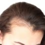 Hair Shedding vs. Hair Loss